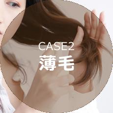 CASE2薄毛