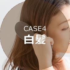 CASE4白髪